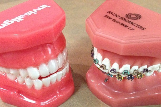 invisalign versus traditional braces